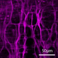 Pig coronary artery: <br>2 photon microscopy
